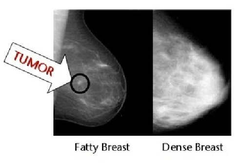Tumor is not clear in a dense breast x-ray film